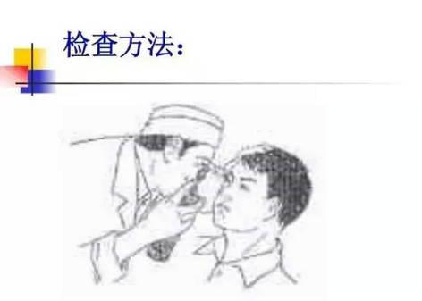 首页 眼病百科 眼睛小知识 > 超经典ppt——裂隙灯